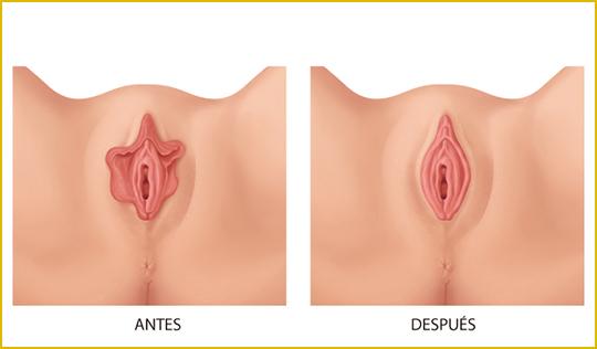 Rejuvenecimiento vaginal sin cirugía